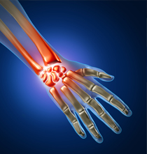 carpal-tunnel-injury-lawyer-kansas-city